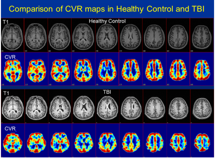 Cerebral Microvascular Injury in Traumatic Brain Injury | Journal of