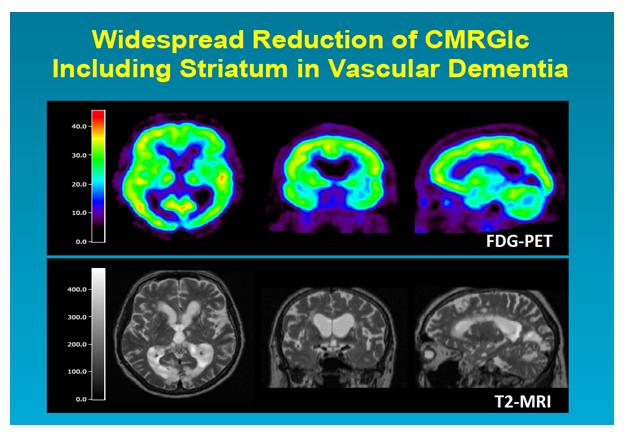 Neuroimaging in Cerebral Small Vessel Disease | Journal of